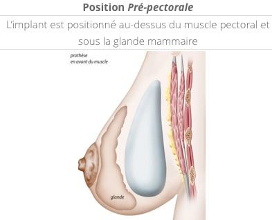 position des prothèses en pré-pectorale