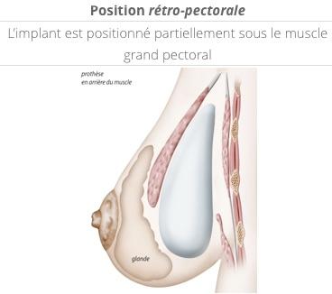 position des prothèses en rétro-pectorale